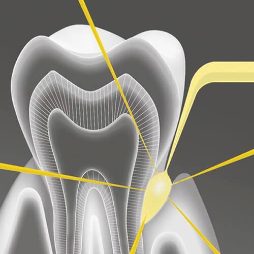 Periodontics and laser treatment